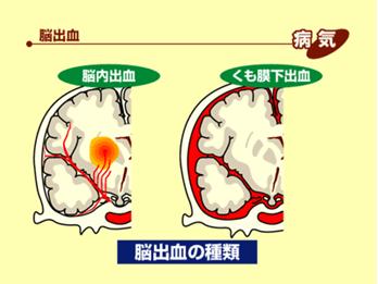脳の病気の話02