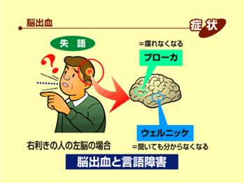 脳の病気の話03