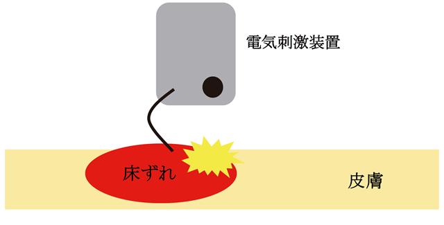 床ずれに対する電気刺激療法